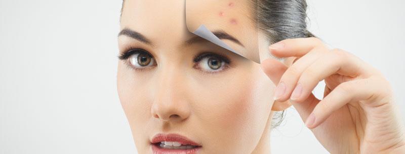 Trattamenti anti acne a Bergamo
